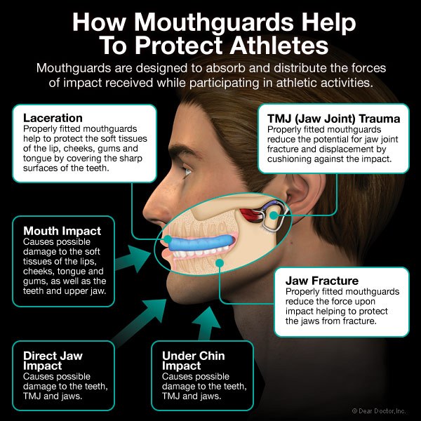 how-mouthguards-protect-athletes1