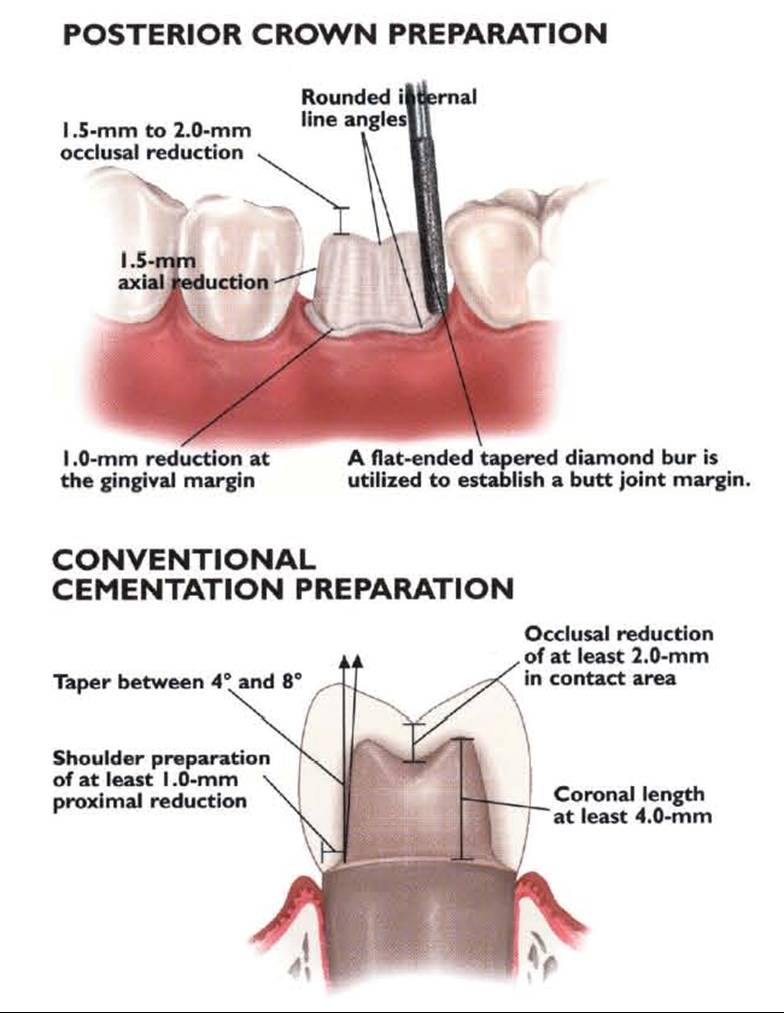 emax posterior prep