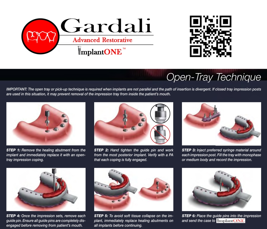 Gardali OPEN tray impression technique guide